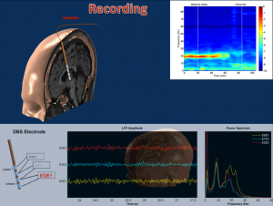 Nuri Ince with the University of Houston Cullen College of Engineering will use data recorded by a deep brain probe to target the subthalamic nucleus, a section of the brain that misfires in Parkinson's patients.