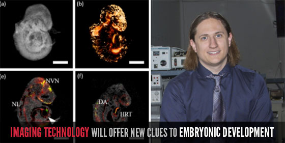 Imaging Technology Will Offer New Clues TO Embryonic Development